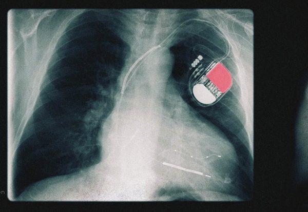 Lebensrettende Batterie